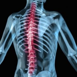 Wirbelsäule Röntgenbild wegen Plasmozytom